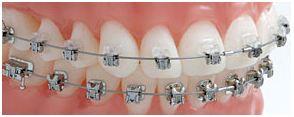 จัดฟันแก้ปัญหาฟันเรียงตัว