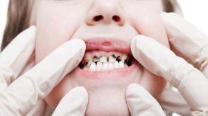 ทำฟัน เพื่อสุขภาพที่ดี