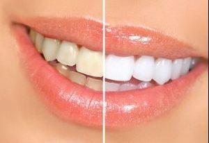 ฟอกสีฟัน เพื่อฟันขาวใส ภายใน 30 นาที