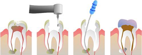 รักษารากฟัน แล้วฟันซี่นั้นจะไม่ปวดอีก