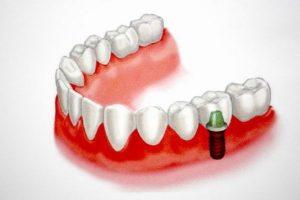 รากฟันเทียม ใส่เพื่อทดแทนฟันที่สูญเสียไป