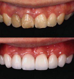 วีเนียร์ ฟันสวยเหมือนดารา